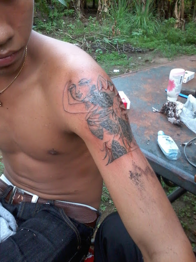 young guy arm